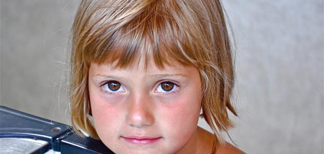 علاج مشكلة سقوط شعر الاطفال