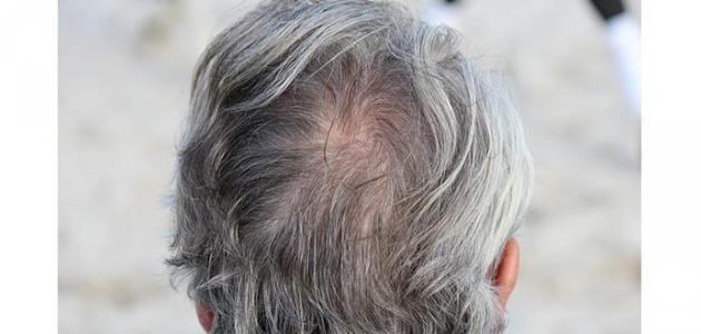 كيفية التخلص من الشعر الابيض