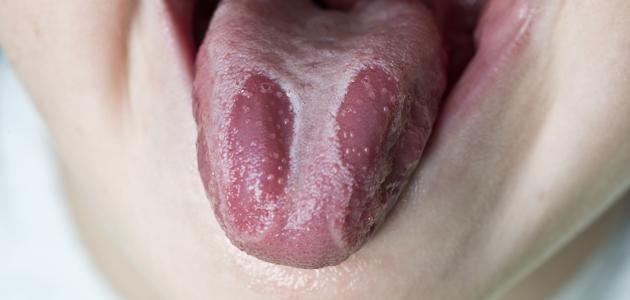 الاصابة ببكتريا اللسان وعلاجها