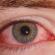 اعراض ارتفاع ضغط العين وكيفية العلاج