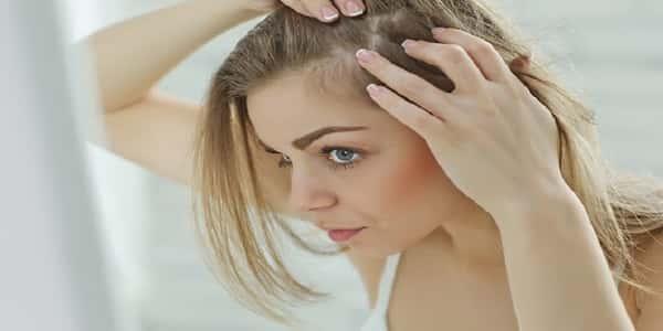 طرق علاج تساقط الشعر الوراثي