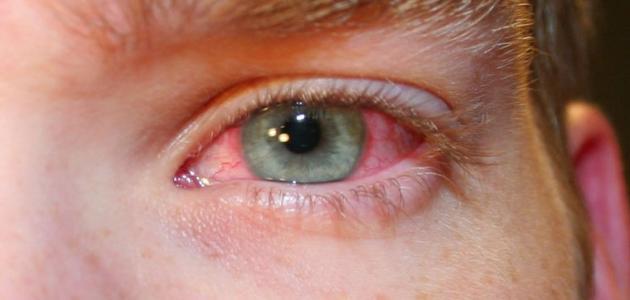 علاج اجهاد العين