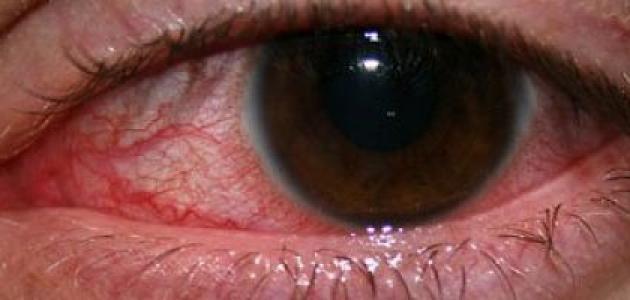 علاج التهاب الملتحمة