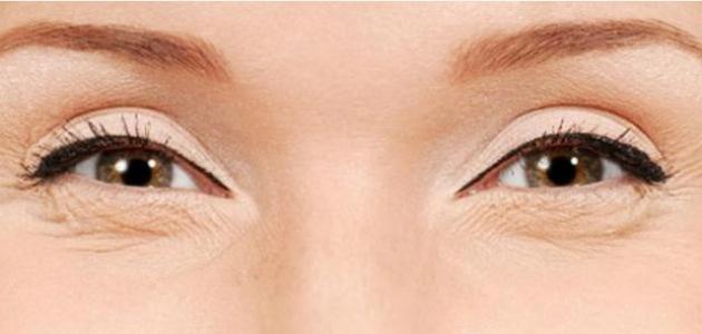 الحمص لعلاج تجاعيد العين