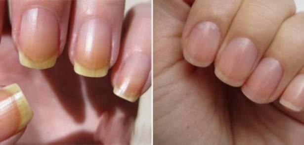 أسباب إصفرار الأظافر وعلاجها
