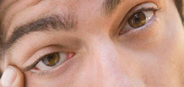 علاج رفة العين اليسرى