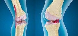 علاج تآكل غضروف الركبة