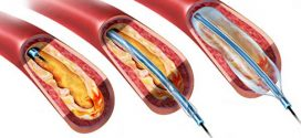 اسباب ضيق الأوعية الدموية