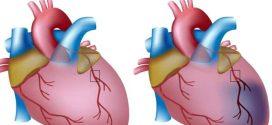اعراض قصور القلب