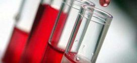 اعراض نقص ألبومين الدم