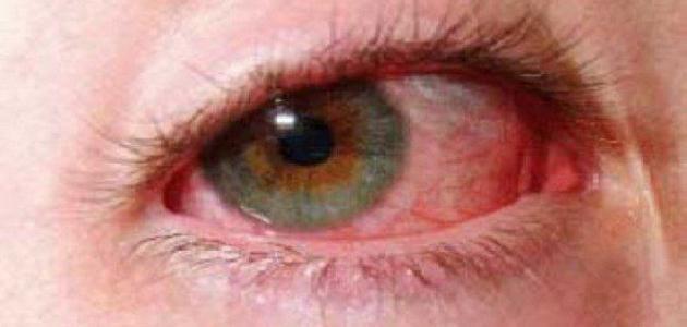 اعراض ارتفاع ضغط العين