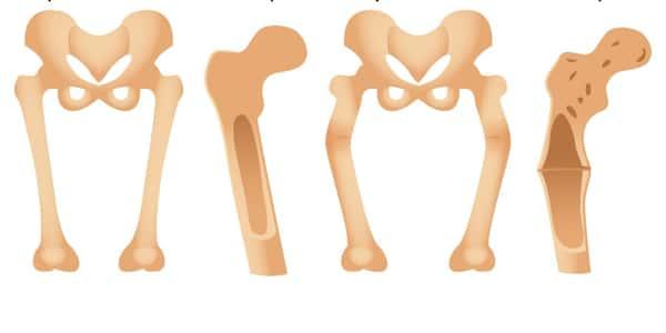 اعراض مرض الكساح