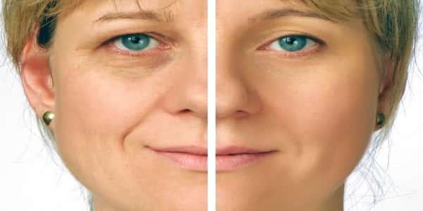 كيفية علاج ترهل الوجه