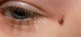 كيفية إزالة الثآليل من الوجه