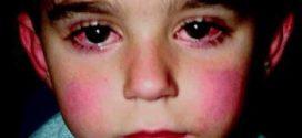 أعراض مرض كوكساكي